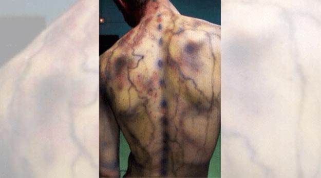 Fibromialgia en Mendoza: el dolor de no ser escuchadas