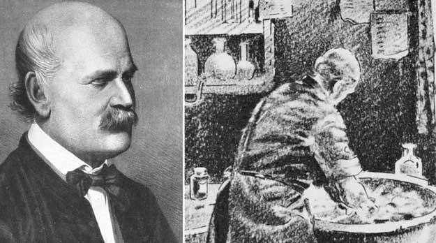 Semmelweis y las causas de la Fiebre Puerperal