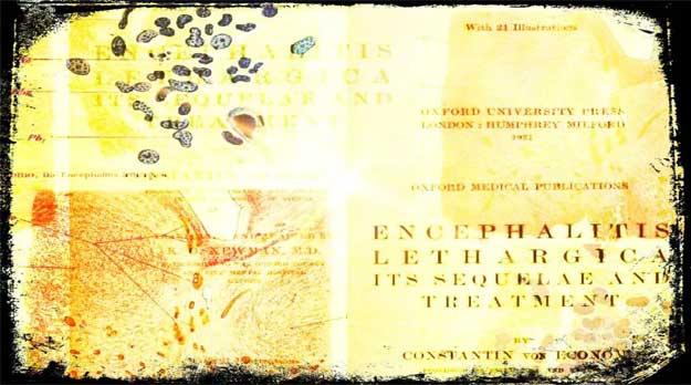 La Epidemia de Encefalitis Letárgica (1917-1928)